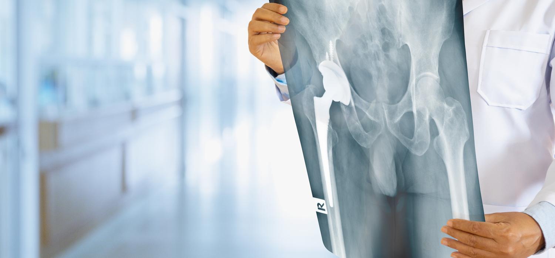 TritonLife - Ortopédia