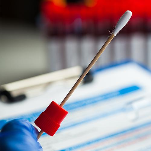 COVID-19 antigén teszt - helyszíni tesztelés